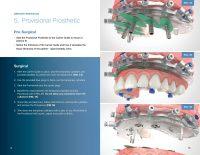 Dentate Surgical Protocol of CHROME GuidedSMILE